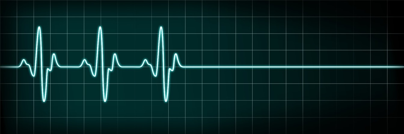 Heart monitor showing when a person has died