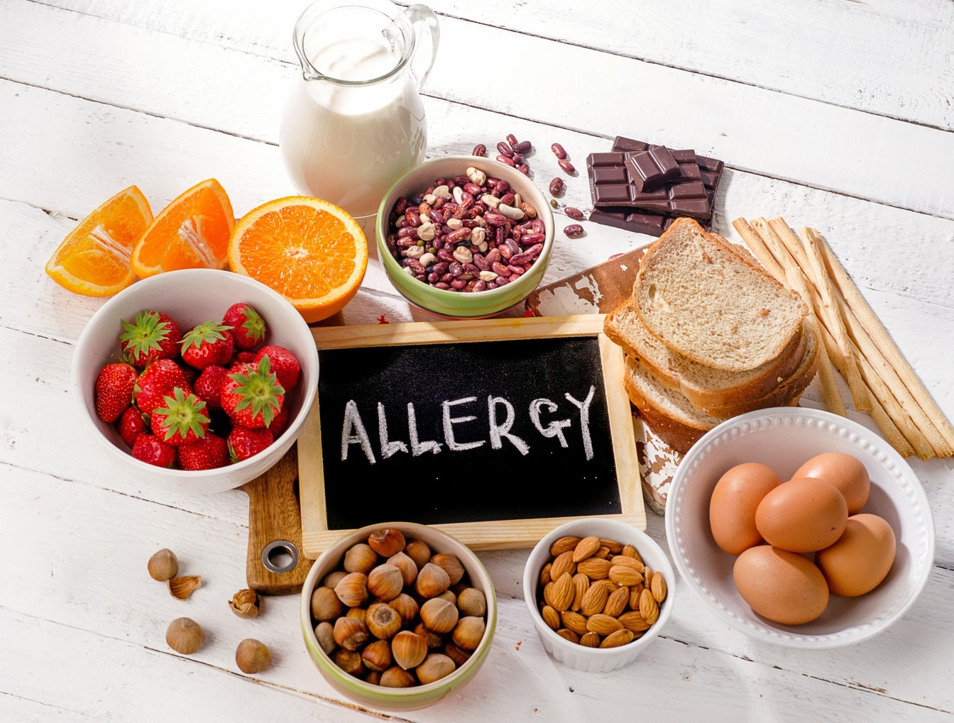 'Allergy' written on a chalk board, surrounded by allergens, including strawberries, bread, eggs, fruit, nuts and milk.