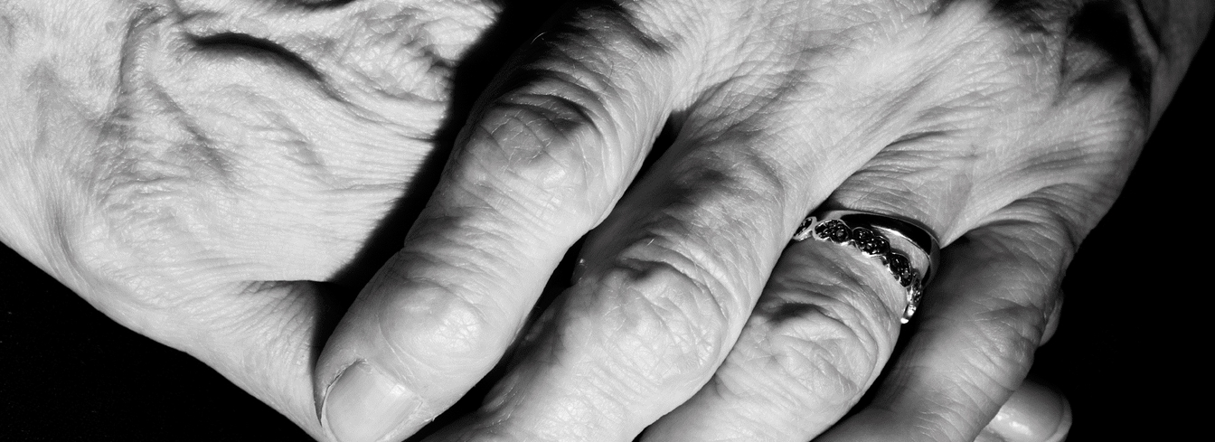 A pair of hands, one resting on top of the other, with a wedding band on the ring finger.